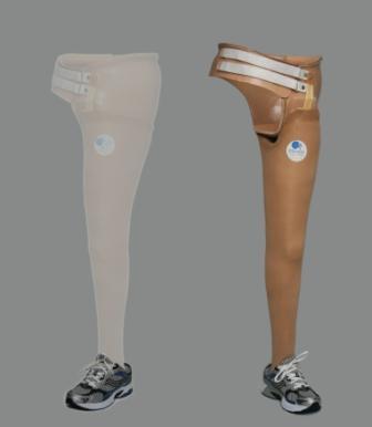pelvis prosthesis 1