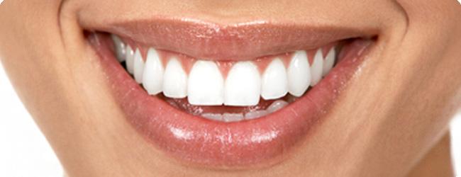 הלבנת שיניים במרכז
