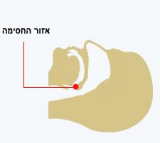 דום נשימה בשינה - אזור החסימה