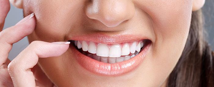 הלבנות שיניים