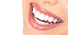 ציפוי שיניים לומינירס