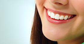 עלות הלבנת שיניים