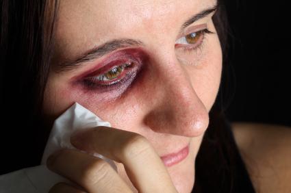 הסדרת מעמד לאחר אלימות במשפחה