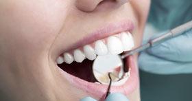 קידום אתרים לרופאי שיניים