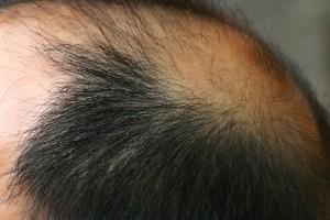 הדבקת שיער לגברים
