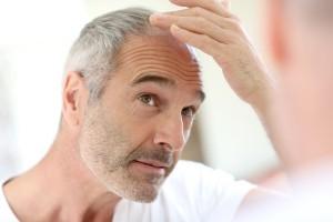 מילוי שיער דליל לגברים