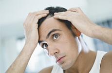 תוספת שיער לגברים
