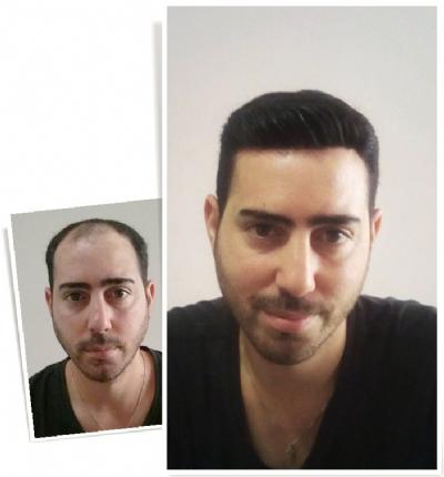 טיפול בתוספת שיער ראשון חינם