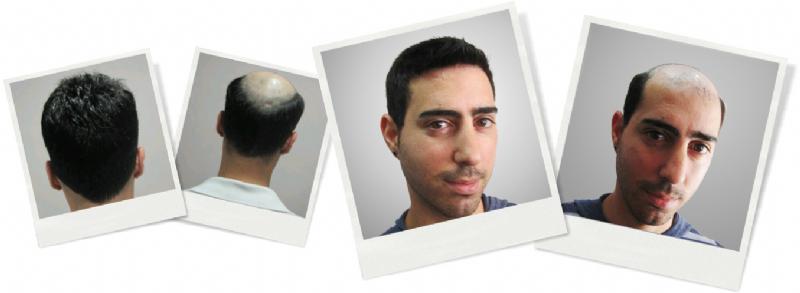 תוספות שיער לגברים