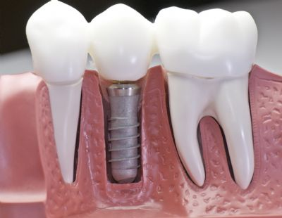 השתלות שיניים ברעננה