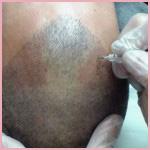 שיטת השערה בגבות והדמיית שיער בקרקפת