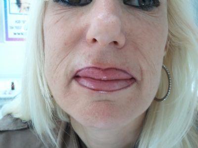 שפתיים תיחום ומילוי