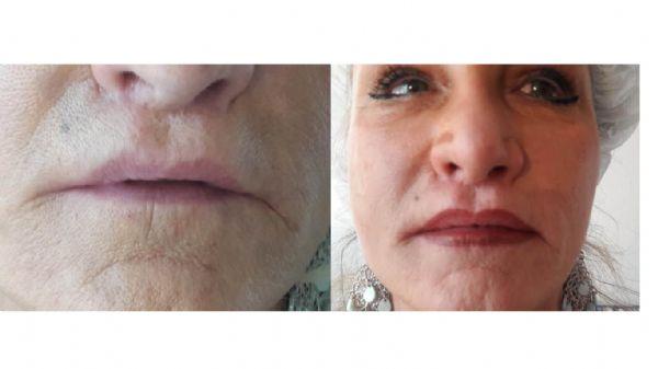 שפתיים לפני ואחרי