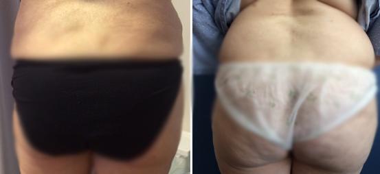 מתיחת עור במותניים ובירך החיצונית לפני ואחרי