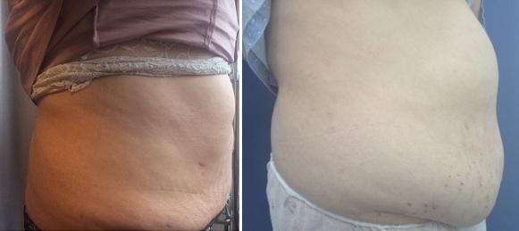 שאיבת שומן ומתיחת עור מאזור הבטן