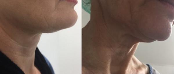 המסת שומן  ומתיחת עור באזור צוואר