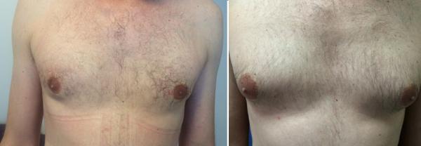 המסת שומן, שאיבת שומן ומתיחת עור באזור החזה