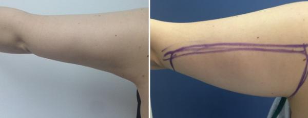 מתיחת עור מאזור זרועות