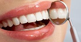 שמירה על היגיינת הפה