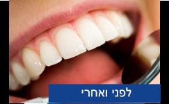 יישור שיניים - לפני ואחרי